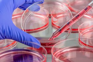Changing medium of cells cultured in petri dishes
